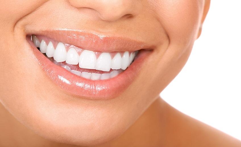 dental-bonding-port-washington-ny-1