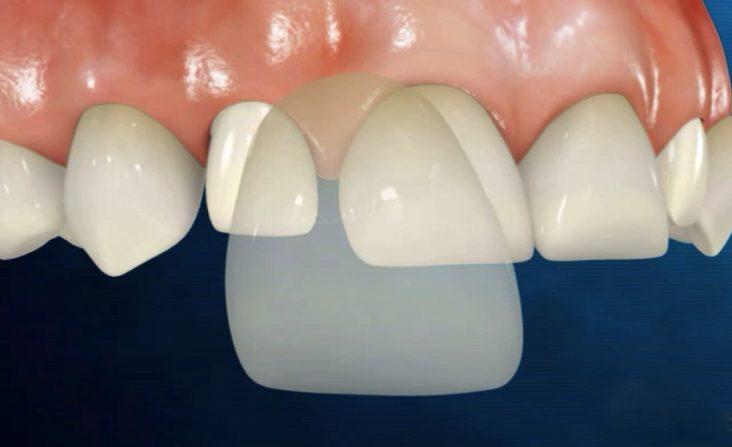 advantages of dental porcelain veneers