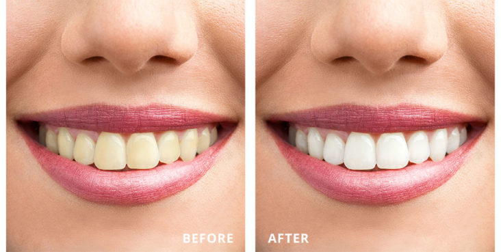 cosmetic dentist long island