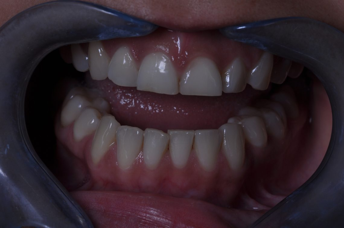 bruxism and teeth grinding